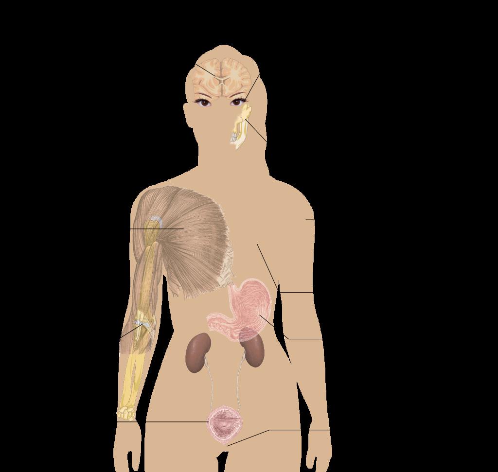 fibromyalgia symptoms diagram